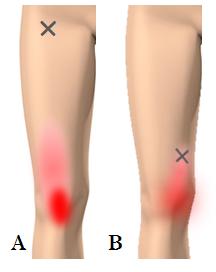 の の 痛み 治し 方 内側 膝